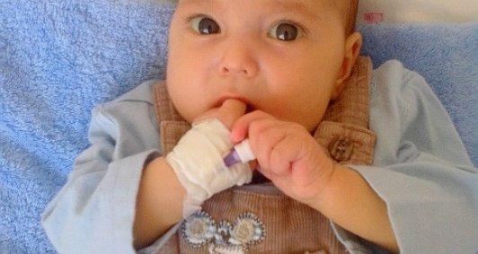 7-ми місячному Запорожському Саші потрібна пересадка печінки