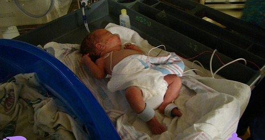Нетерплячки – придбання контуру для штучної вентиляції легень новонароджених