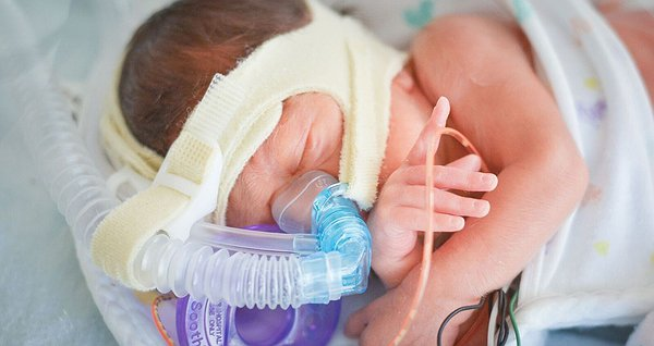 Допомога недоношеним пацієнтам ІПАГу. 2