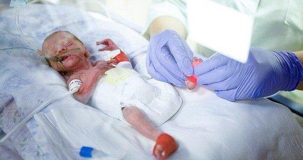 Врятуй життя передчасно народженим діткам!