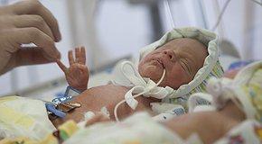 SOS. Реанімація новонароджених. Рівне