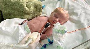 Захистимо рятувальників дитячих сердець