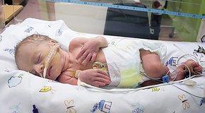 Порятунок недоношених дітей залежить від нас