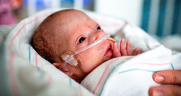 Рятівний кисень для немовлят